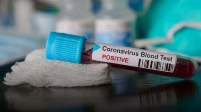 По состоянию на 24 марта 2020 года в Джизакской области не зафиксировано ни одного случая заражения коронавирусной инфекцией